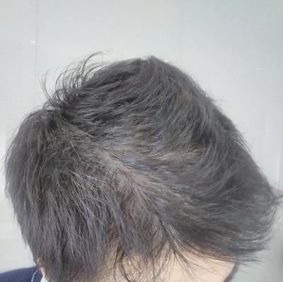 f:id:MinatoYukiya:20190715085120j:plain