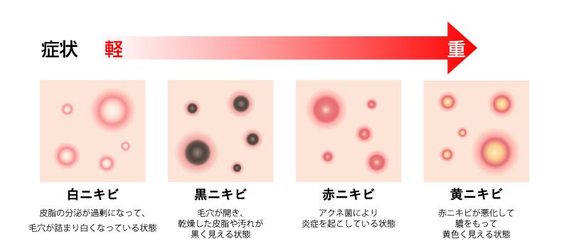 f:id:MizutamaNoKokoro18:20200516210709j:plain