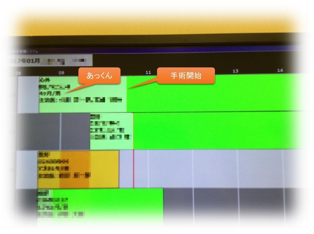 f:id:MoriKen254:20170113161659j:plain