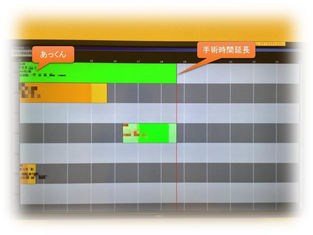 f:id:MoriKen254:20170113165133j:plain