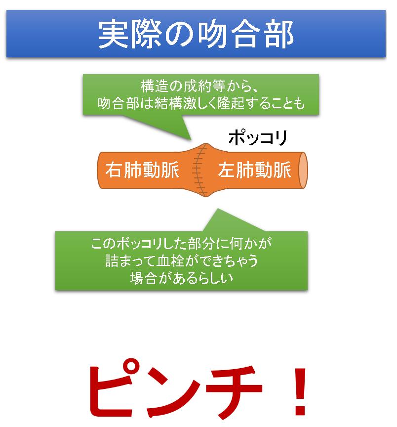 f:id:MoriKen254:20180525225000p:plain