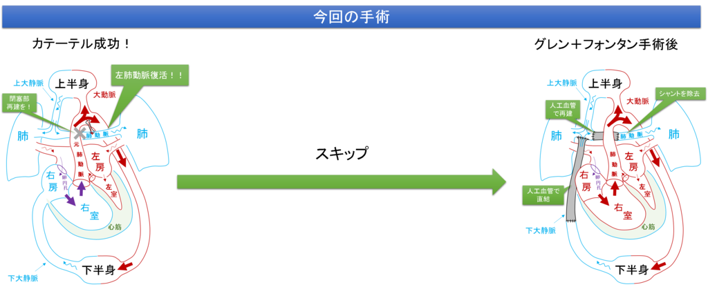 f:id:MoriKen254:20190228162152p:plain