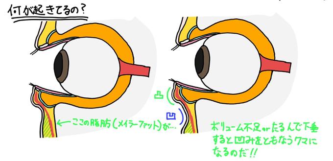f:id:NakamuraY:20210228001818p:plain