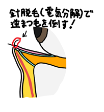 f:id:NakamuraY:20210301141415p:plain