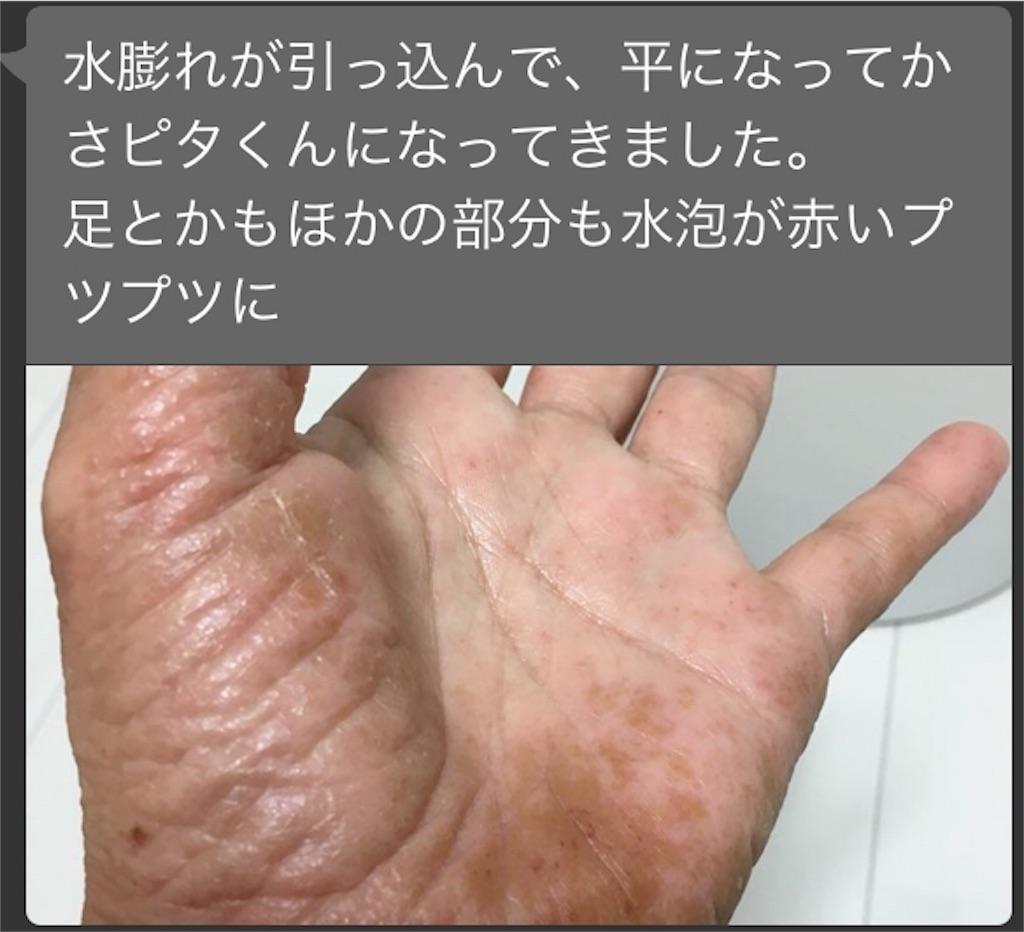 f:id:Nanavi7:20180719003058j:image
