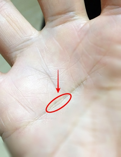手のひらの薬指すぐ下の感情線にできた島を検証する