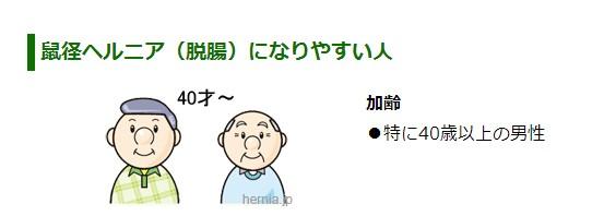 f:id:PARM:20160920220659j:plain