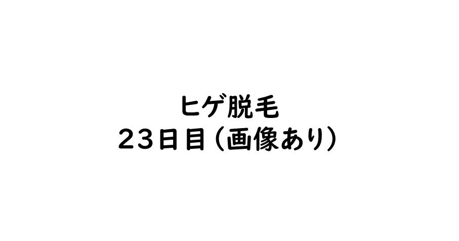 f:id:Re_hirose:20180826194204p:plain