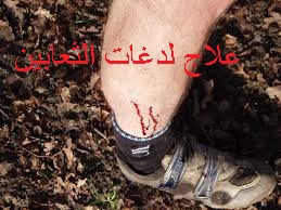 f:id:ShaimaHussein:20170621092310j:plain