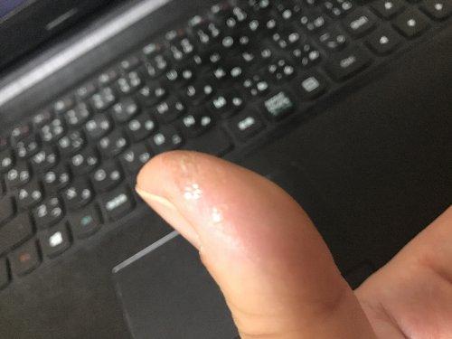 指先ぱっくり割れ 液体ばんそうこう