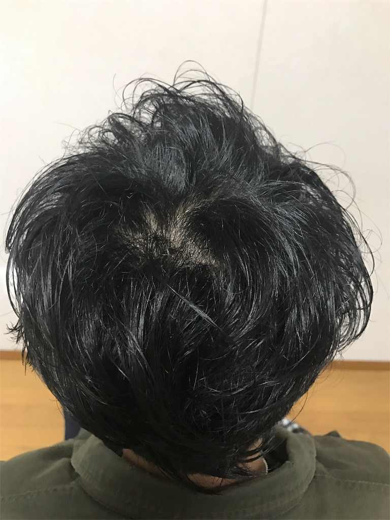 f:id:TaijuMatsushita:20170127234545j:image