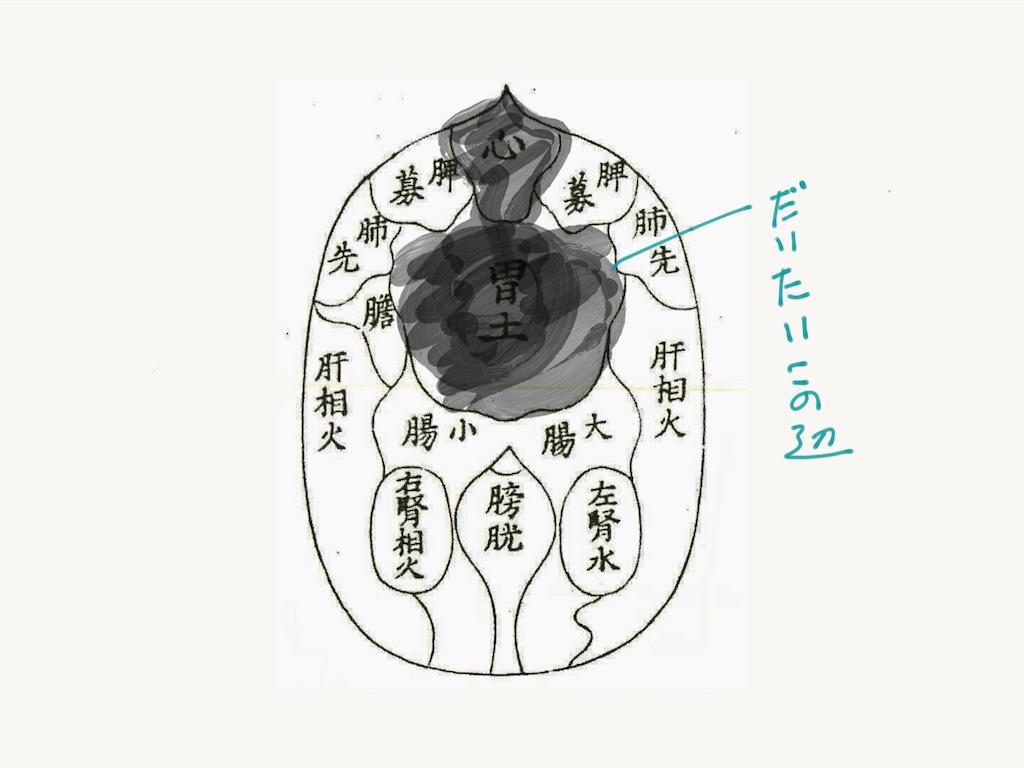 f:id:Touyouigakunomyoushindou:20160801181919p:image