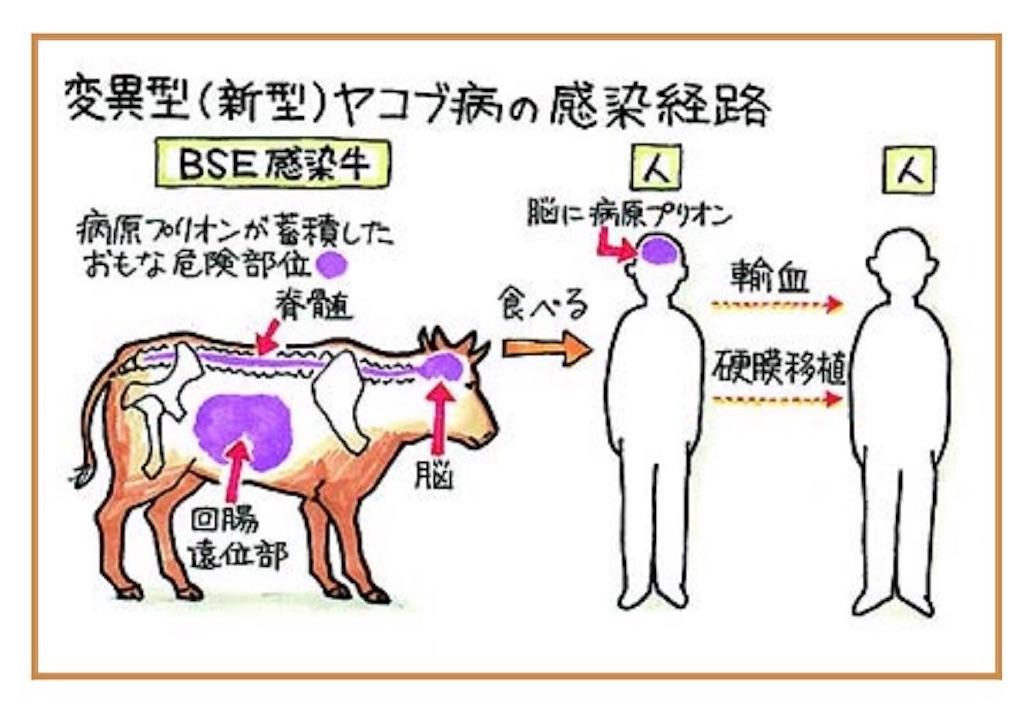輸入牛肉」BSE(狂牛病) 月齢制限 撤廃 - キニナル 〜見てきた事や聞い ...