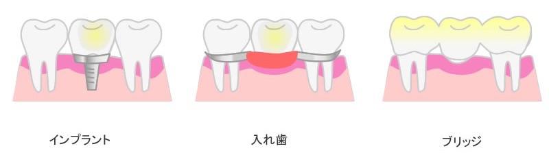 f:id:YAMAKO:20210116175117j:plain