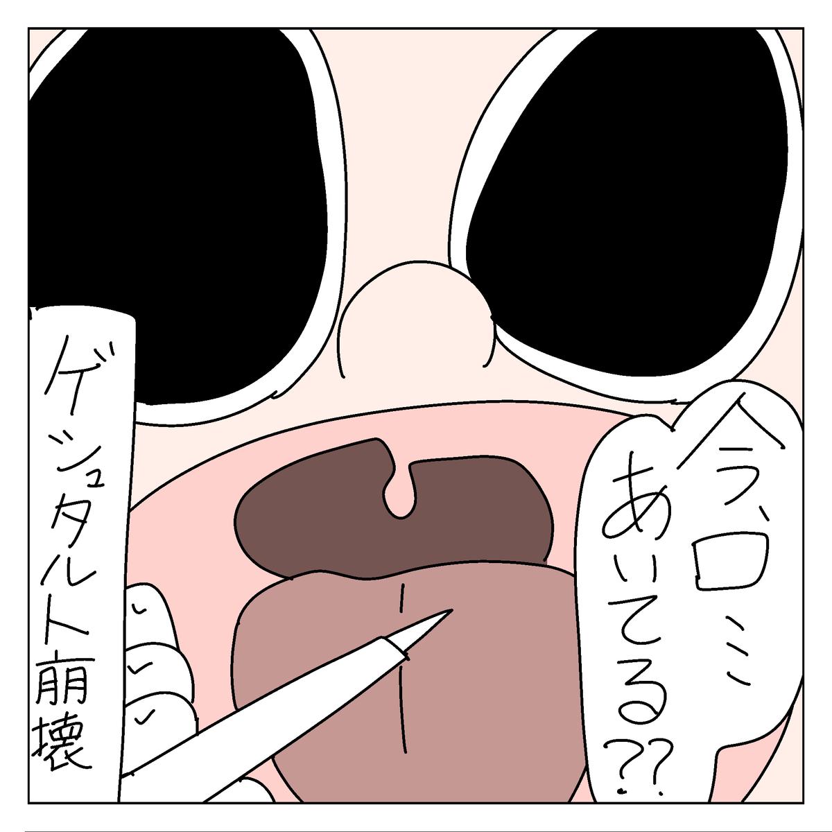 f:id:YuruFuwaTa:20200430102317p:plain