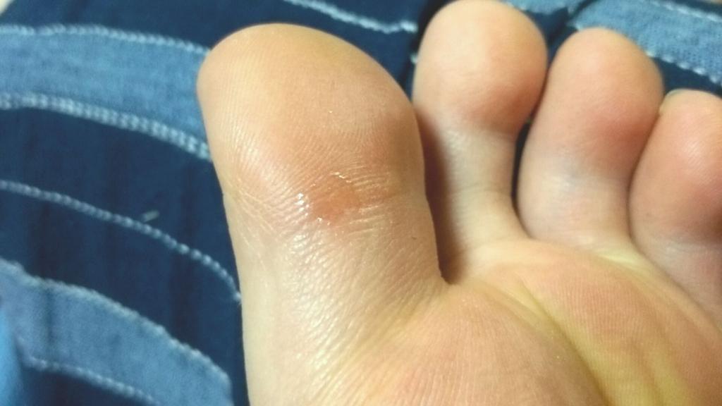 足の指にできた魚の目(イボコロリ塗布直後)