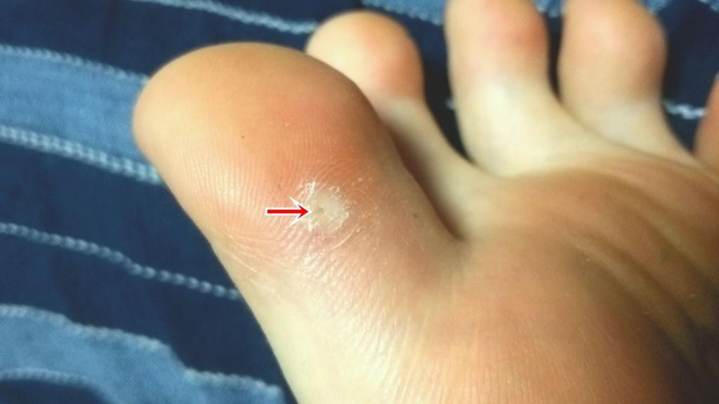 足の指にできた魚の目(イボコロリ数回塗布後)