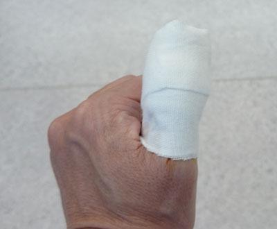 指先のケガ