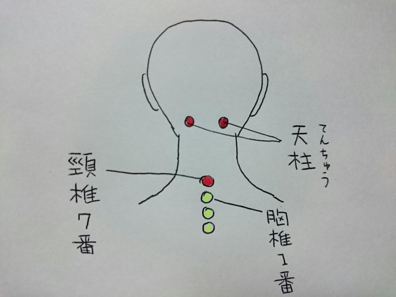 f:id:abikodojo:20170124090618j:image