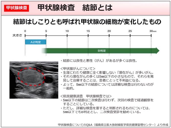 画像:甲状腺結節とは