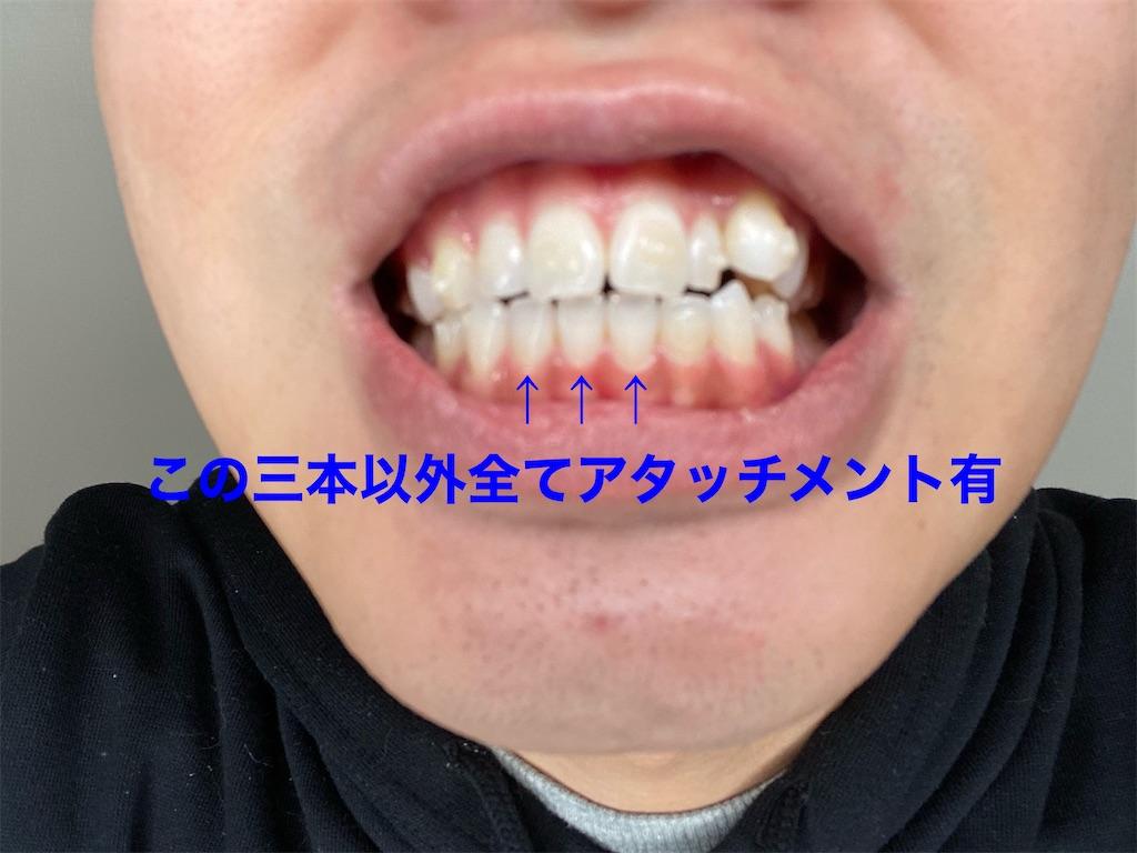 f:id:achipion:20200211145056j:plain