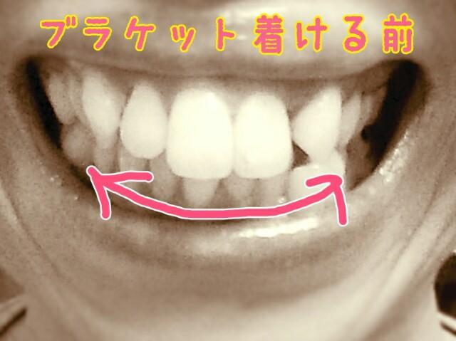 f:id:acomitolife:20151222210541j:image