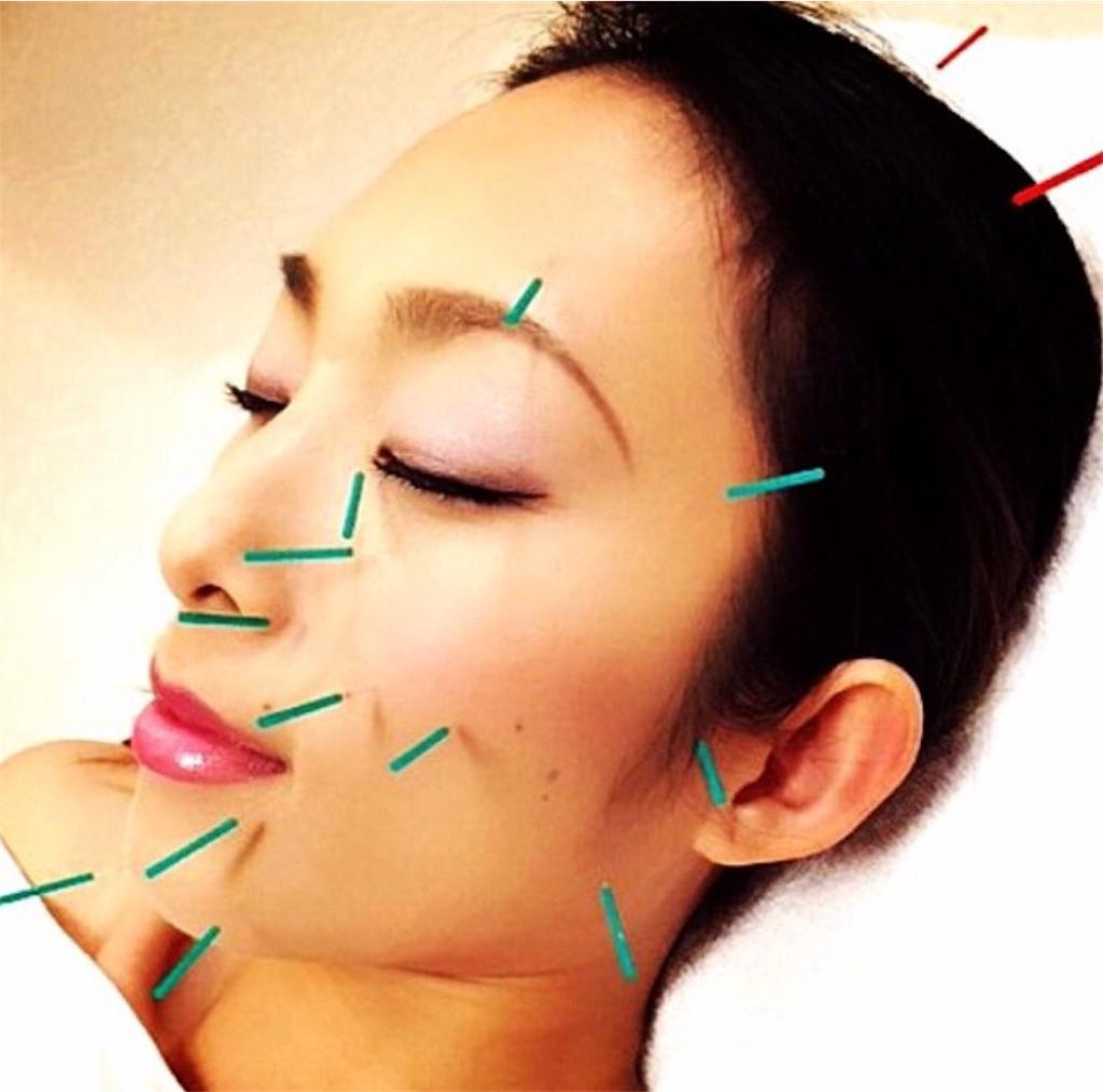 f:id:acupuncture_728199:20170824212753j:plain