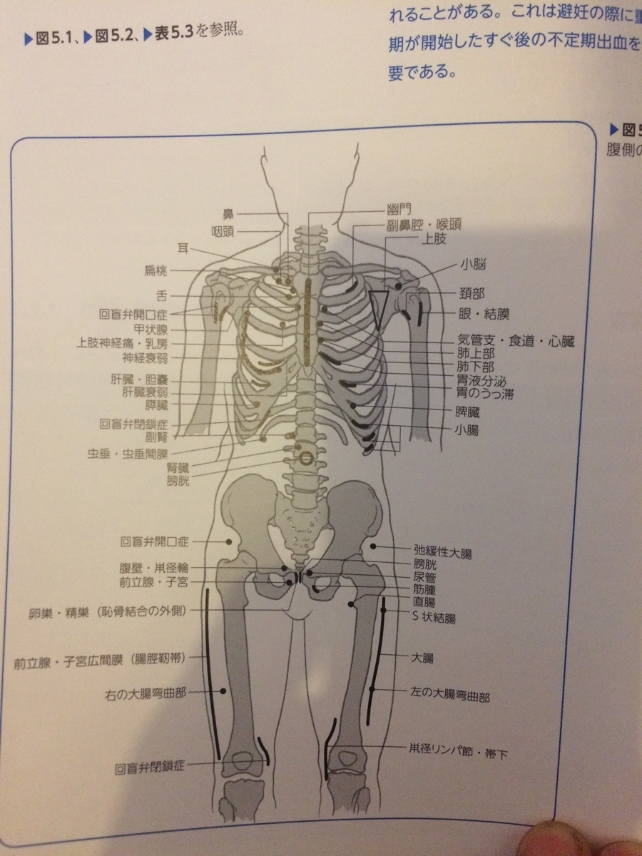 f:id:acupuncturistontheship:20200720221413j:plain