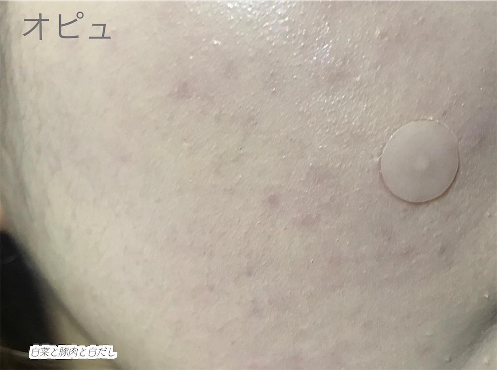オピュのクッションファンデを塗って見た肌。濃いニキビ跡は隠し切れていない。