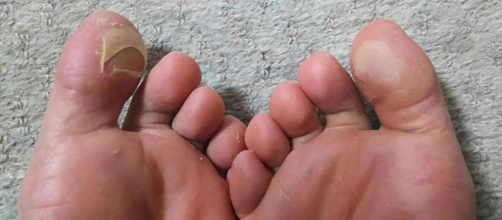 親指 皮 剥け 足 の