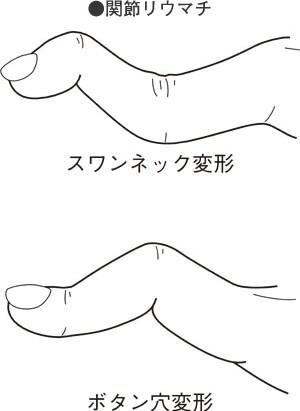 f:id:aiko-and-sibajyun:20170110144937j:image