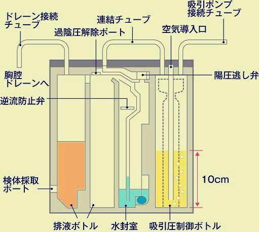 f:id:aiko-and-sibajyun:20170131120546j:image