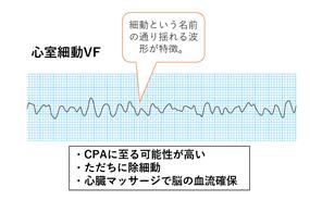 f:id:aisonashiyakuzaishi:20210304055128p:plain