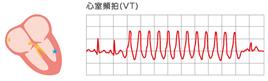 f:id:aisonashiyakuzaishi:20210304055150p:plain