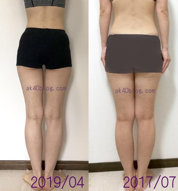 足の比較写真