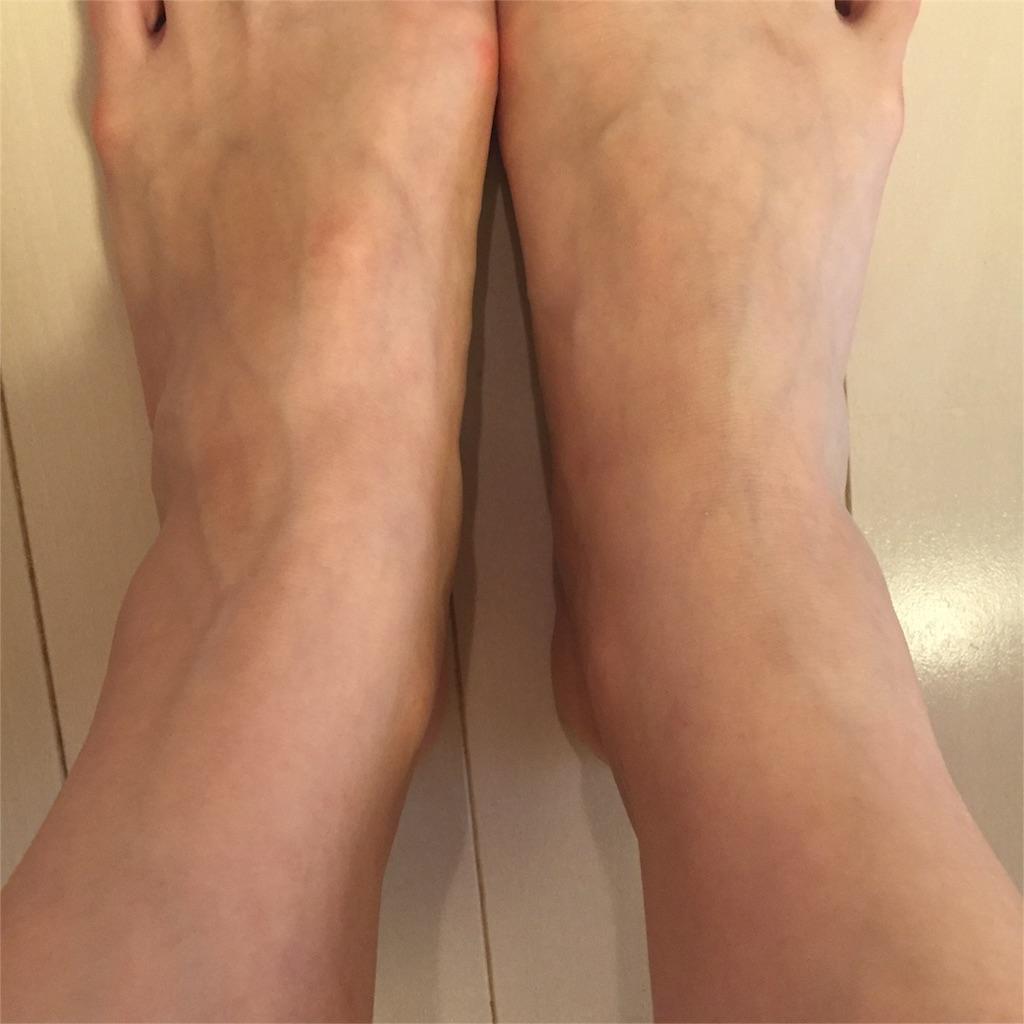 ねんざの処置 方法 翌日の足首 写真