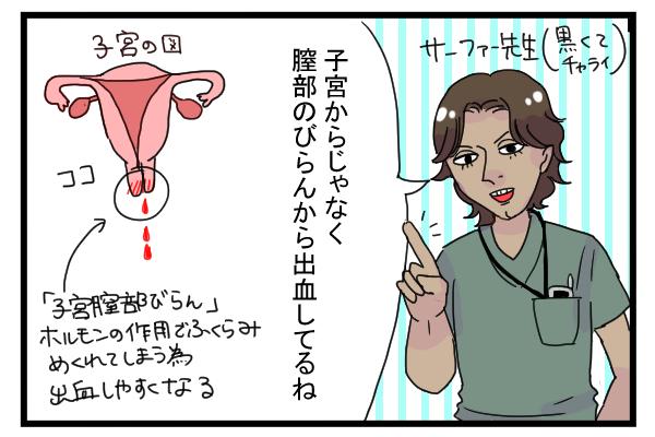 妊娠初期 出血 茶色 6週