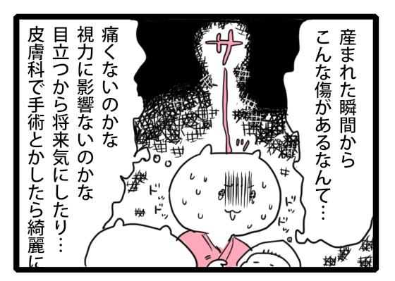 瞼に傷が!生まれたての赤ちゃんの顔を見てびっくり! by 笹吉