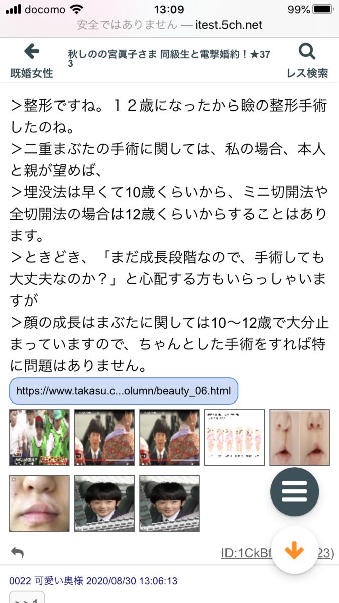 f:id:akatsuki_bigdeta806z:20200905134725p:plain