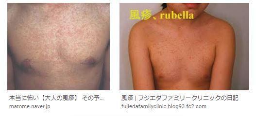 f:id:akihitosuzuki:20200519082200j:plain