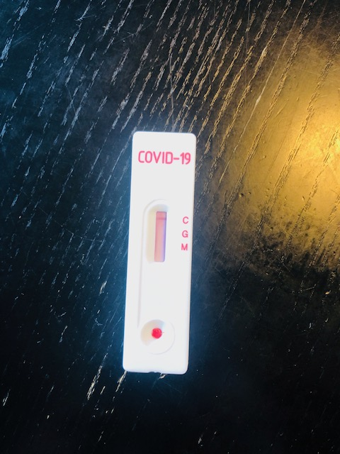 COVID19 抗体検査