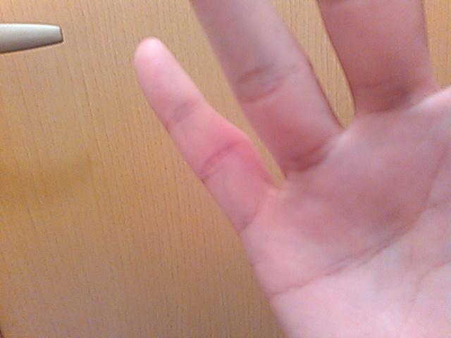 石灰化により小指が腫れた画像