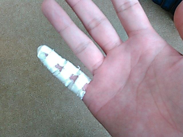 テーピングした指を正面から見た画像