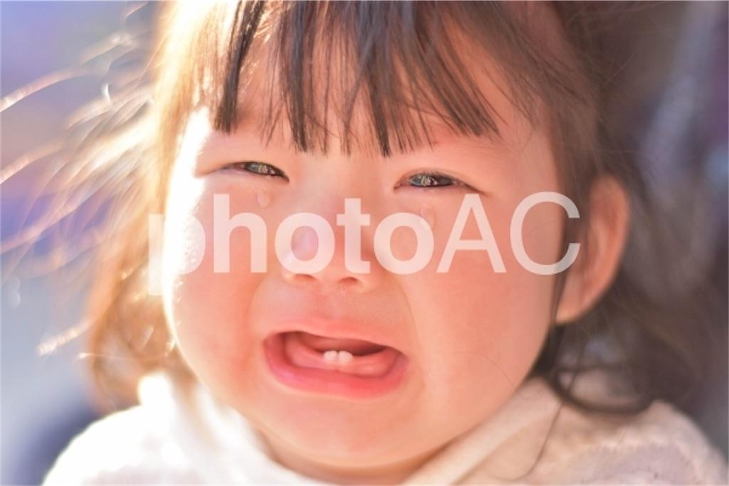 赤ちゃんの歯並びが悪くなる原因