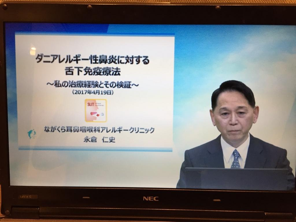f:id:akita-ent:20170419195050j:plain