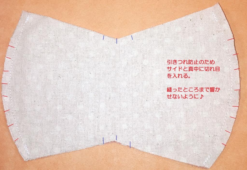 f:id:allergy_nagasakikko:20160710082902j:plain