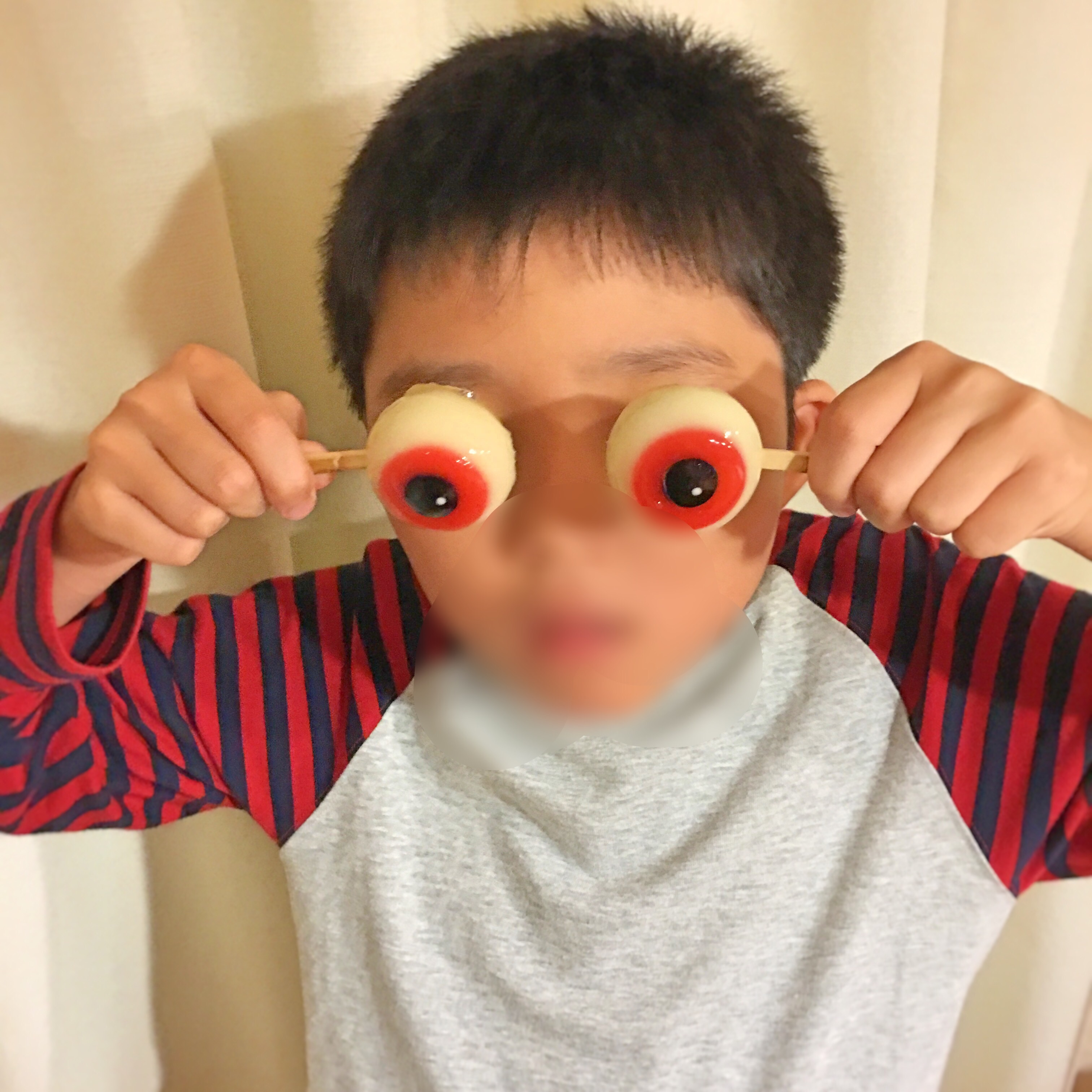 f:id:allergy_nagasakikko:20160808203213j:image
