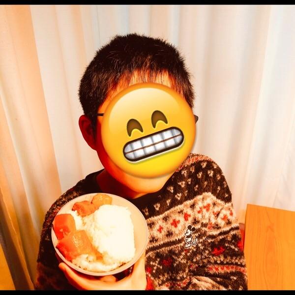 f:id:allergy_nagasakikko:20190316072649j:image