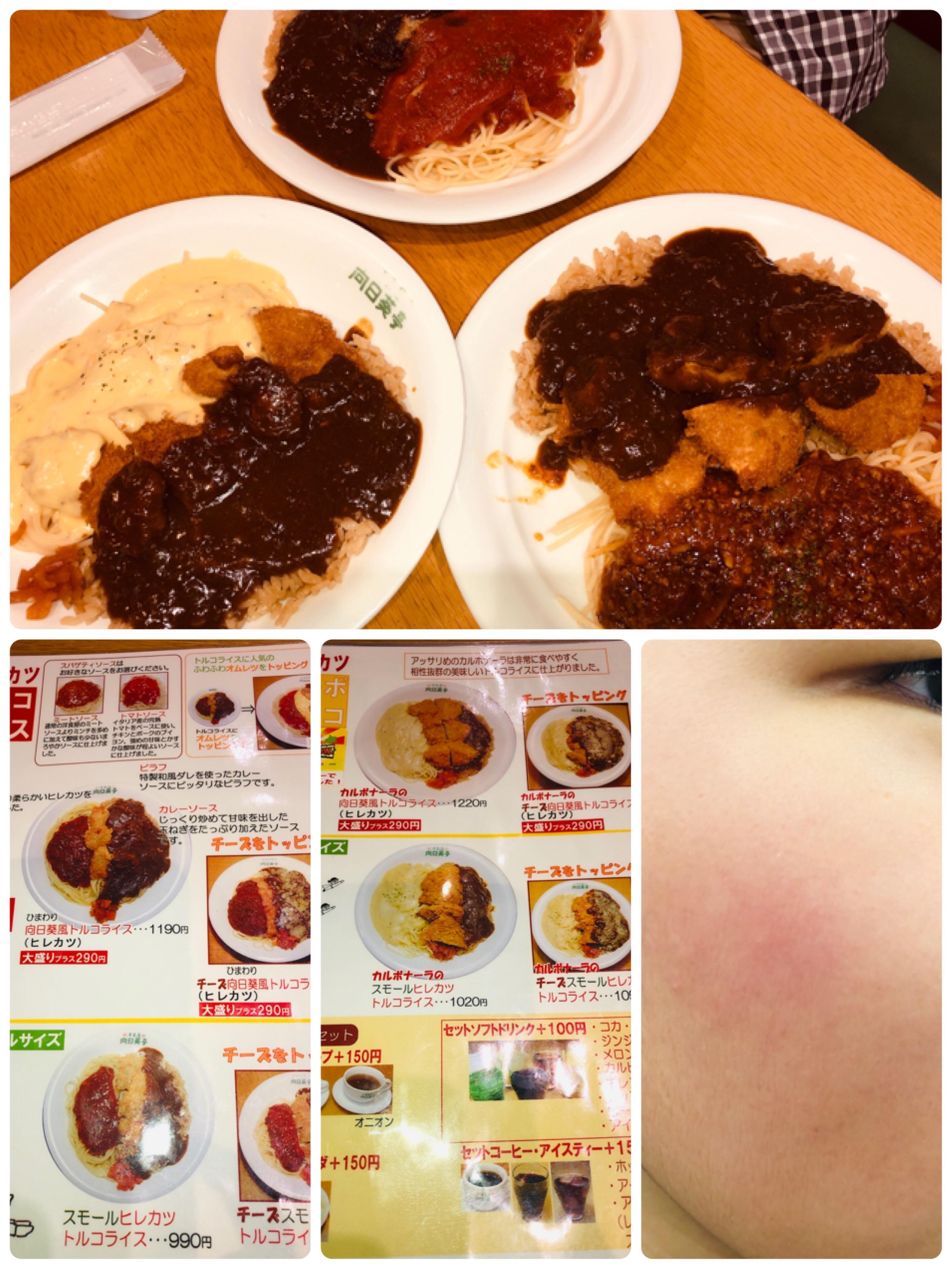 f:id:allergy_nagasakikko:20190901170958j:image