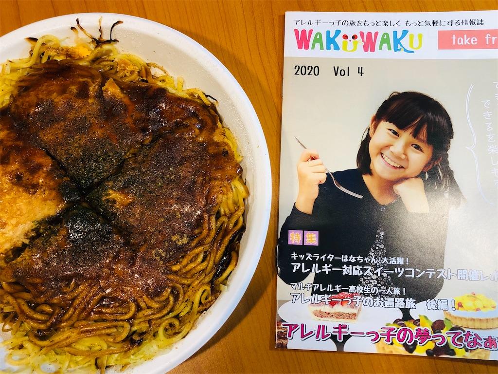 f:id:allergy_nagasakikko:20200314144532j:image